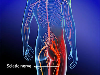Massage Therapy for Sciatica